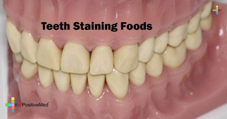 Teeth Staining Foods