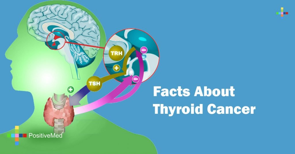 Facts About Thyroid Cancer
