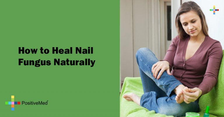 How to Heal Nail Fungus Naturally