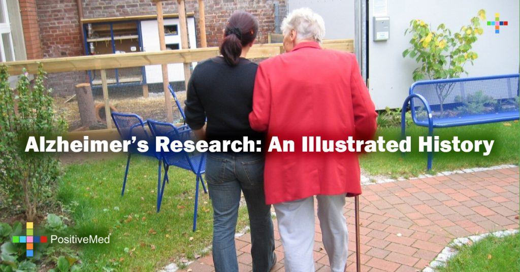 Alzheimer's Research: An Illustrated History