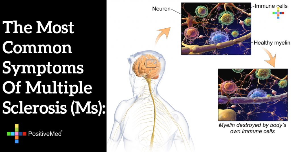 The most common symptoms of multiple sclerosis (MS):