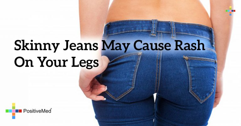 Skinny jeans may cause rash on your legs