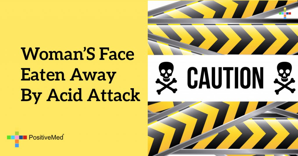 Woman's Face Eaten Away By Acid Attack
